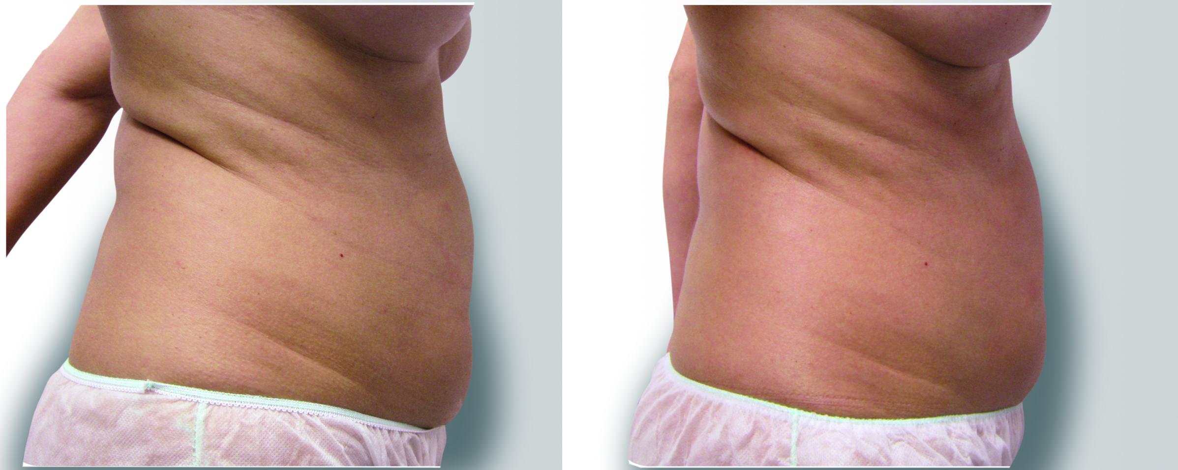 antes y despues corporal indiba