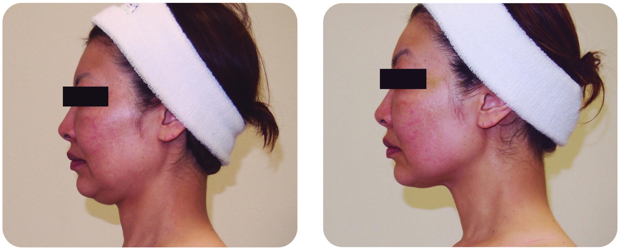 antes y despues facial indiba